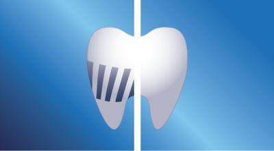 Usuwa więcej płytki nazębnej niż zwykła szczoteczka do zębów dla dzieci