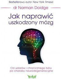 Jak naprawić uszkodzony mózg - 200790