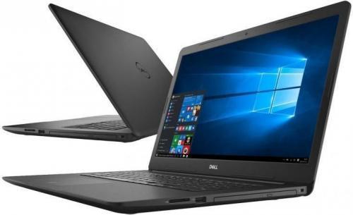 Laptop Dell Inspiron 5570 (LOKI15KBL1901_2418_B)